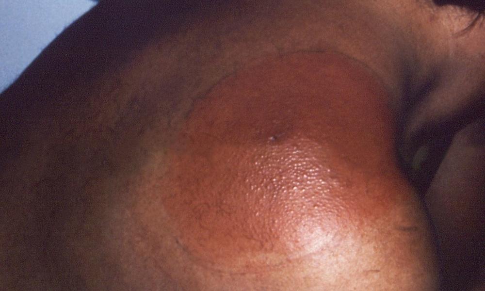 Typical Lyme disease rash, darker skin